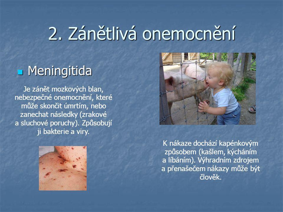2. Zánětlivá onemocnění Meningitida Meningitida Je zánět mozkových blan, nebezpečné onemocnění, které může skončit úmrtím, nebo zanechat následky (zra