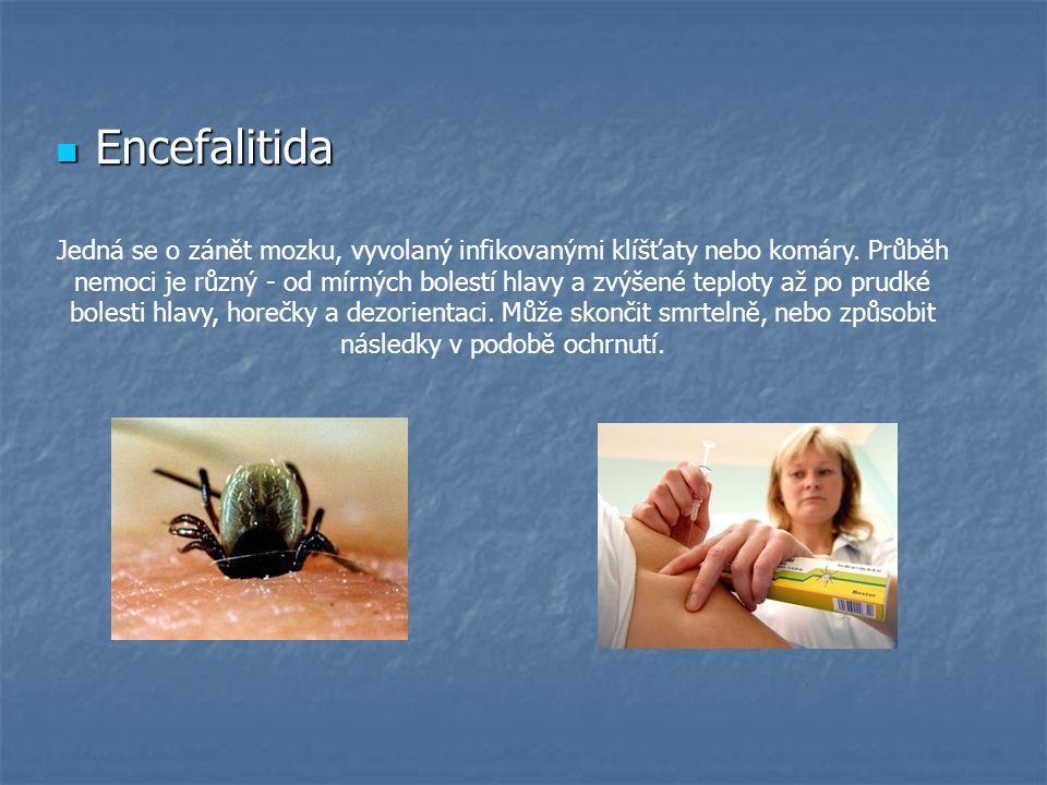 Vzteklina Vzteklina Smrtelně nebezpečné infekční onemocnění.