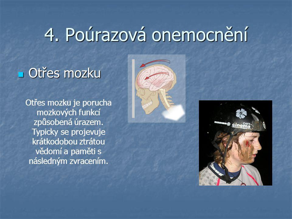 4. Poúrazová onemocnění Otřes mozku Otřes mozku Otřes mozku je porucha mozkových funkcí způsobená úrazem. Typicky se projevuje krátkodobou ztrátou věd