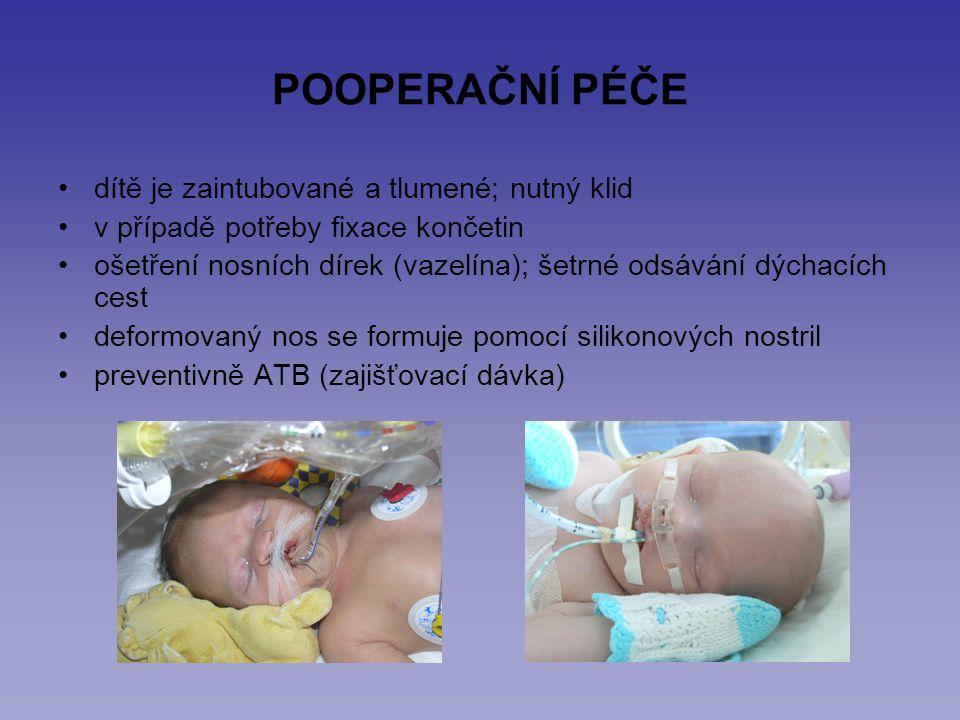 POOPERAČNÍ PÉČE dítě je zaintubované a tlumené; nutný klid v případě potřeby fixace končetin ošetření nosních dírek (vazelína); šetrné odsávání dýchac