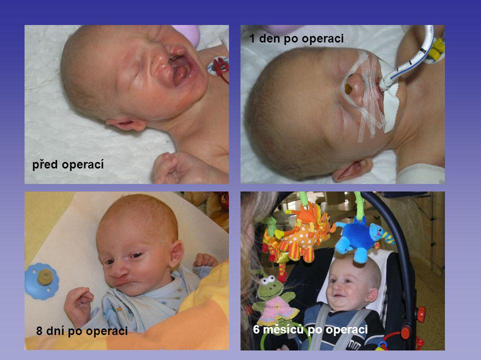 před operací 1 den po operaci 8 dní po operaci 6 měsíců po operaci