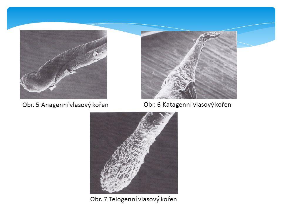 Obr. 5 Anagenní vlasový kořen Obr. 7 Telogenní vlasový kořen Obr. 6 Katagenní vlasový kořen