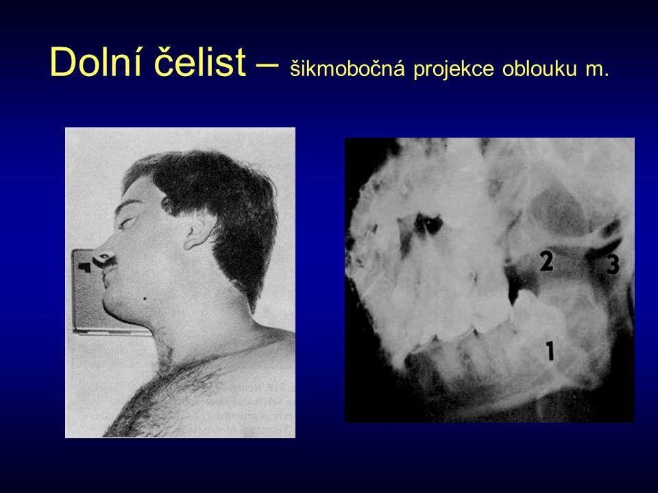 Dolní čelist – šikmobočná projekce oblouku m.