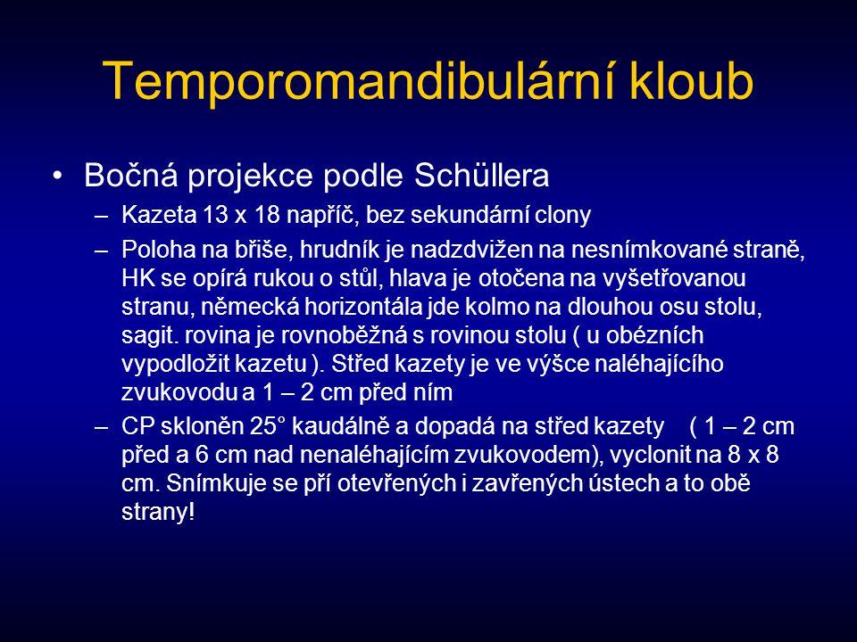 Temporomandibulární kloub Bočná projekce podle Schüllera –Kazeta 13 x 18 napříč, bez sekundární clony –Poloha na břiše, hrudník je nadzdvižen na nesní