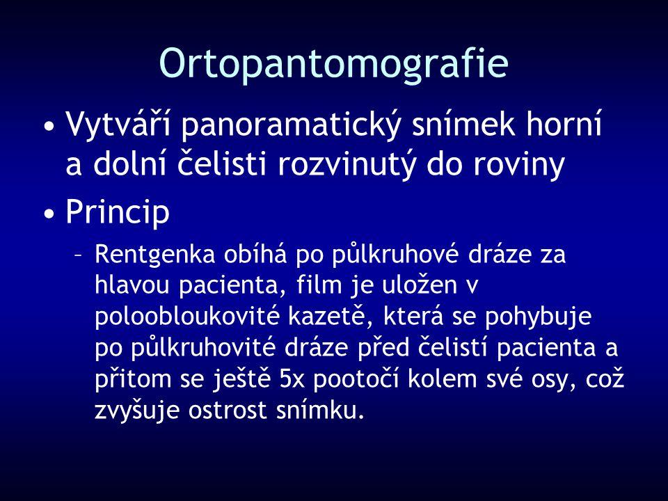Ortopantomografie Vytváří panoramatický snímek horní a dolní čelisti rozvinutý do roviny Princip –Rentgenka obíhá po půlkruhové dráze za hlavou pacien