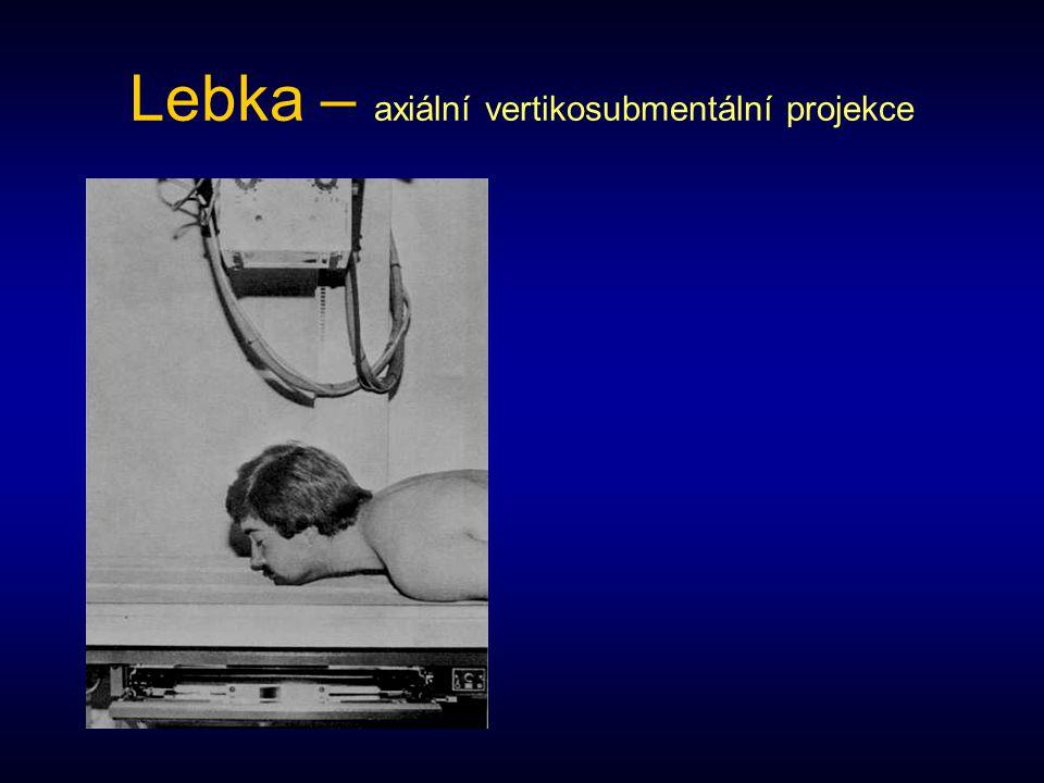 Jařmové oblouky Kraniosubmentální projekce –Kazeta 24 x 30 na výšku, sekundární clona –Poloha vleže na břiše, brada je opřena o stůl s otevřenými ústy, nos je nad stolem.