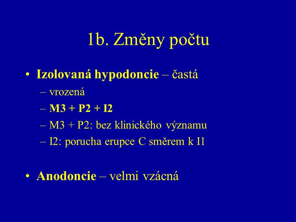 1b. Změny počtu Izolovaná hypodoncie – častá –vrozená –M3 + P2 + I2 –M3 + P2: bez klinického významu –I2: porucha erupce C směrem k I1 Anodoncie – vel