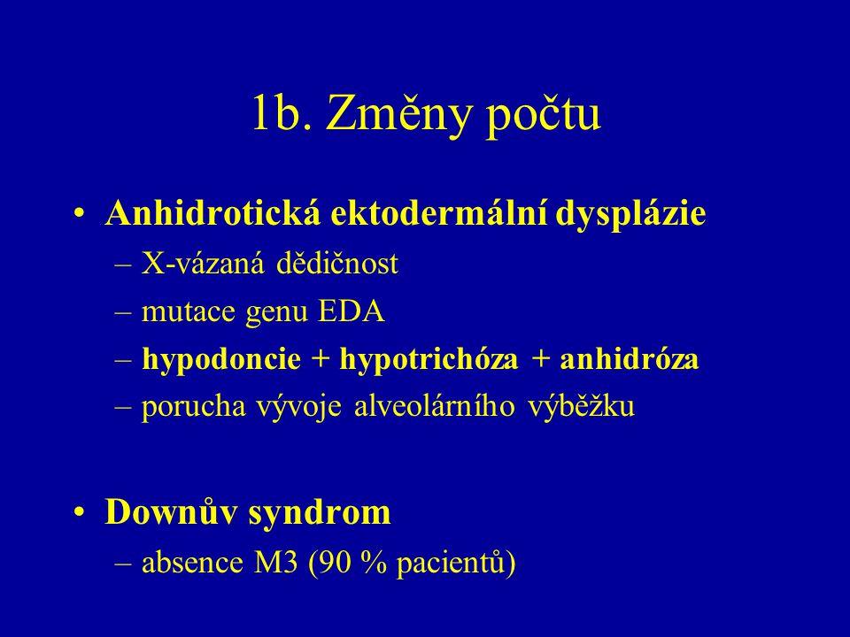 1b. Změny počtu Anhidrotická ektodermální dysplázie –X-vázaná dědičnost –mutace genu EDA –hypodoncie + hypotrichóza + anhidróza –porucha vývoje alveol