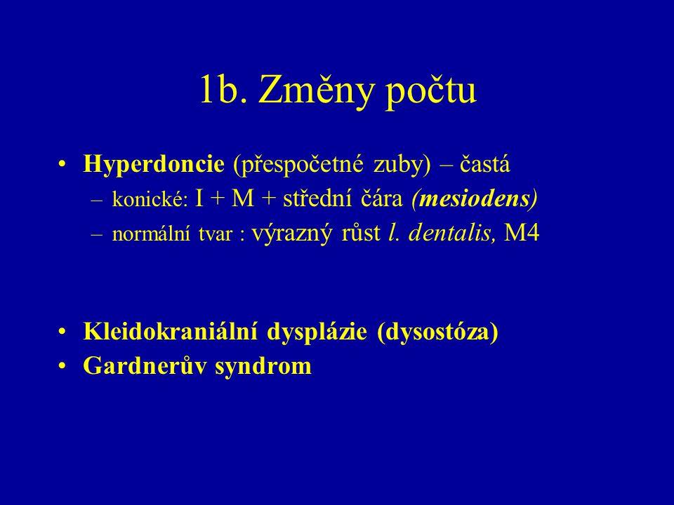1b. Změny počtu Hyperdoncie (přespočetné zuby) – častá –konické: I + M + střední čára (mesiodens) –normální tvar : výrazný růst l. dentalis, M4 Kleido