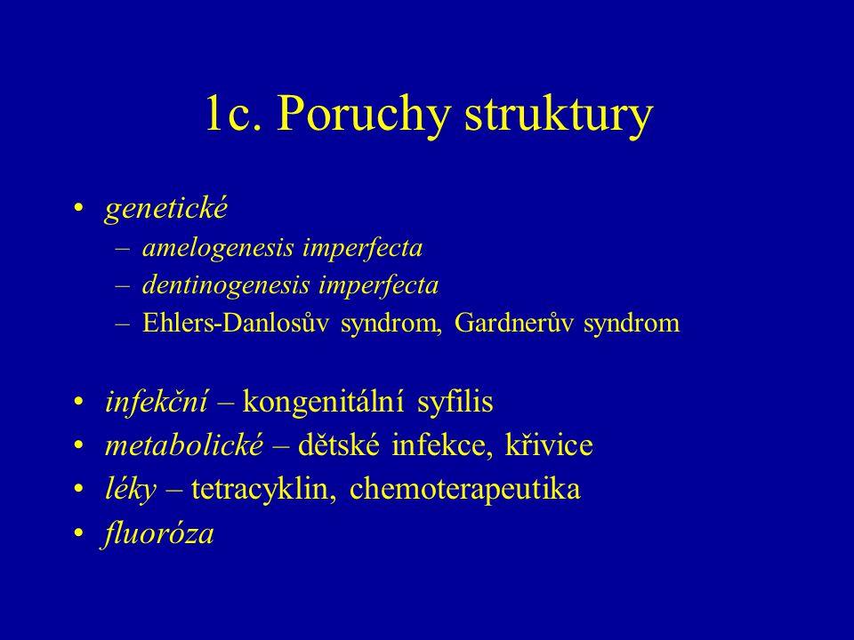 1c. Poruchy struktury genetické –amelogenesis imperfecta –dentinogenesis imperfecta –Ehlers-Danlosův syndrom, Gardnerův syndrom infekční – kongenitáln
