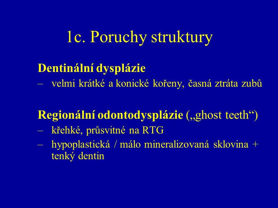 """1c. Poruchy struktury Dentinální dysplázie –velmi krátké a konické kořeny, časná ztráta zubů Regionální odontodysplázie (""""ghost teeth"""") –křehké, průsv"""