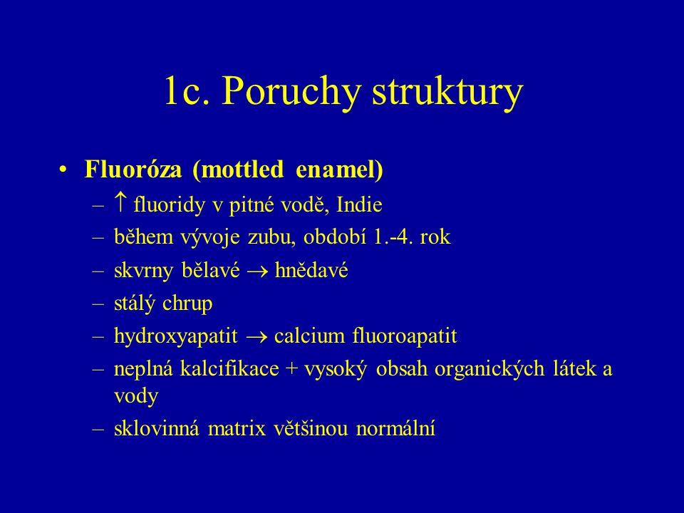 1c. Poruchy struktury Fluoróza (mottled enamel) –  fluoridy v pitné vodě, Indie –během vývoje zubu, období 1.-4. rok –skvrny bělavé  hnědavé –stálý