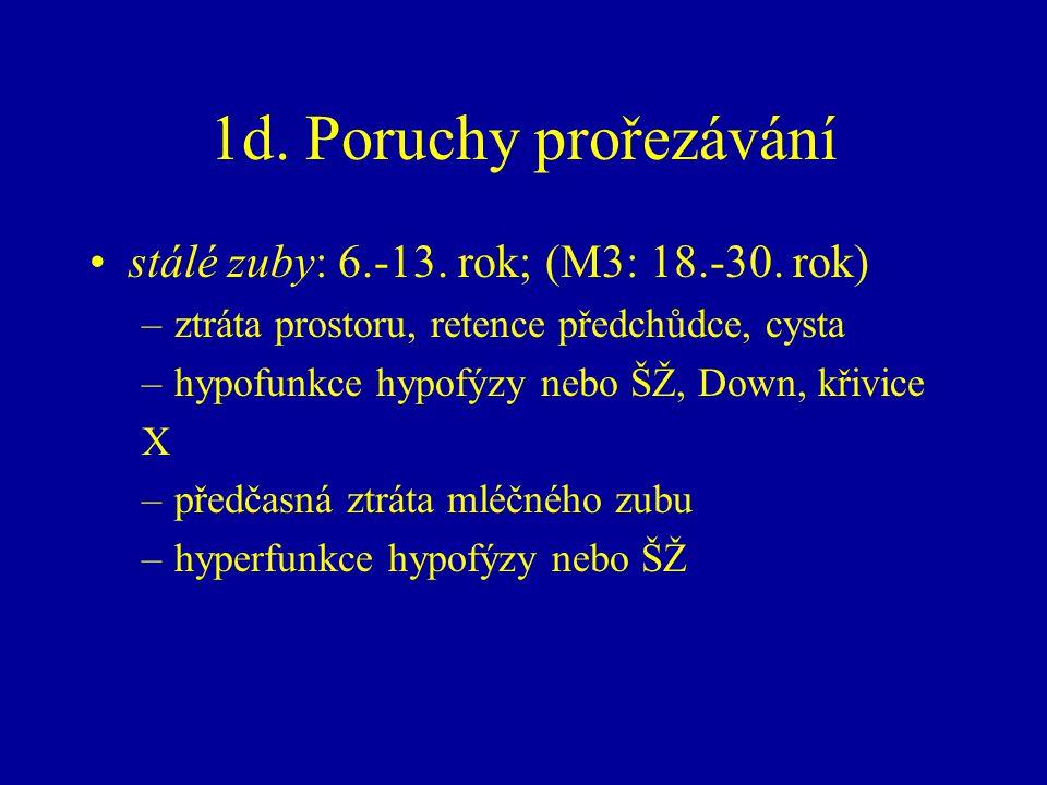 1d. Poruchy prořezávání stálé zuby: 6.-13. rok; (M3: 18.-30. rok) –ztráta prostoru, retence předchůdce, cysta –hypofunkce hypofýzy nebo ŠŽ, Down, křiv