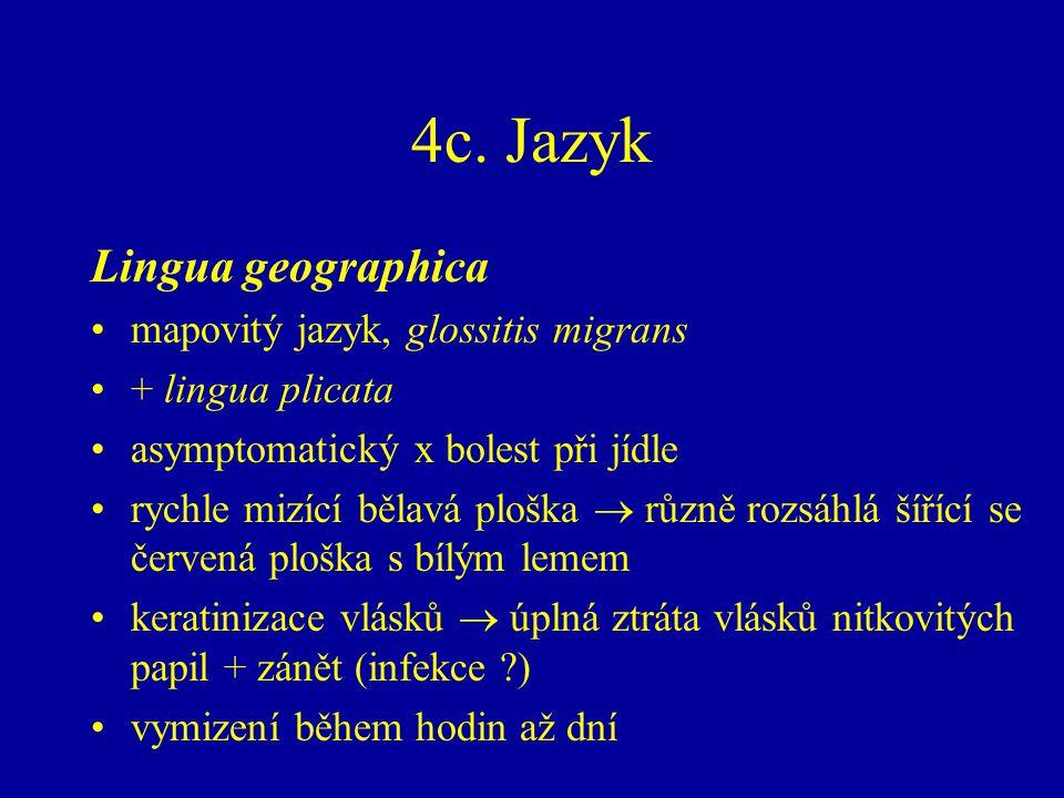 4c. Jazyk Lingua geographica mapovitý jazyk, glossitis migrans + lingua plicata asymptomatický x bolest při jídle rychle mizící bělavá ploška  různě