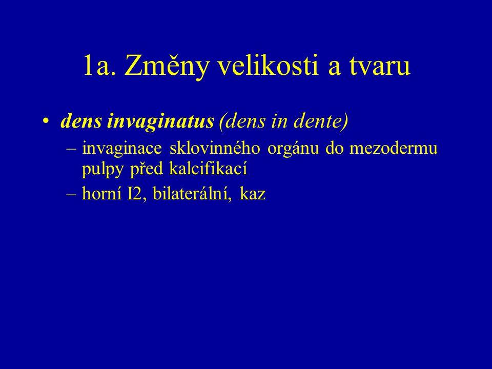 1a. Změny velikosti a tvaru dens invaginatus (dens in dente) –invaginace sklovinného orgánu do mezodermu pulpy před kalcifikací –horní I2, bilaterální