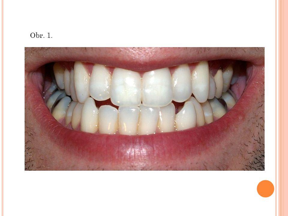 Chrup Chrup - je označení pro soubor zubů v ústní dutině Zub Zub ( dens ) - je tvrdý útvar v dutině ústní - slouží hlavně k uchopování, oddělování a rozmělňování potravy - zdravý dospělý člověk má celkem 32 zubů - rozdělení zubů: řezáky (8) špičáky (4) třenové zuby (premoláry) (8) stoličky (moláry) (8+4)