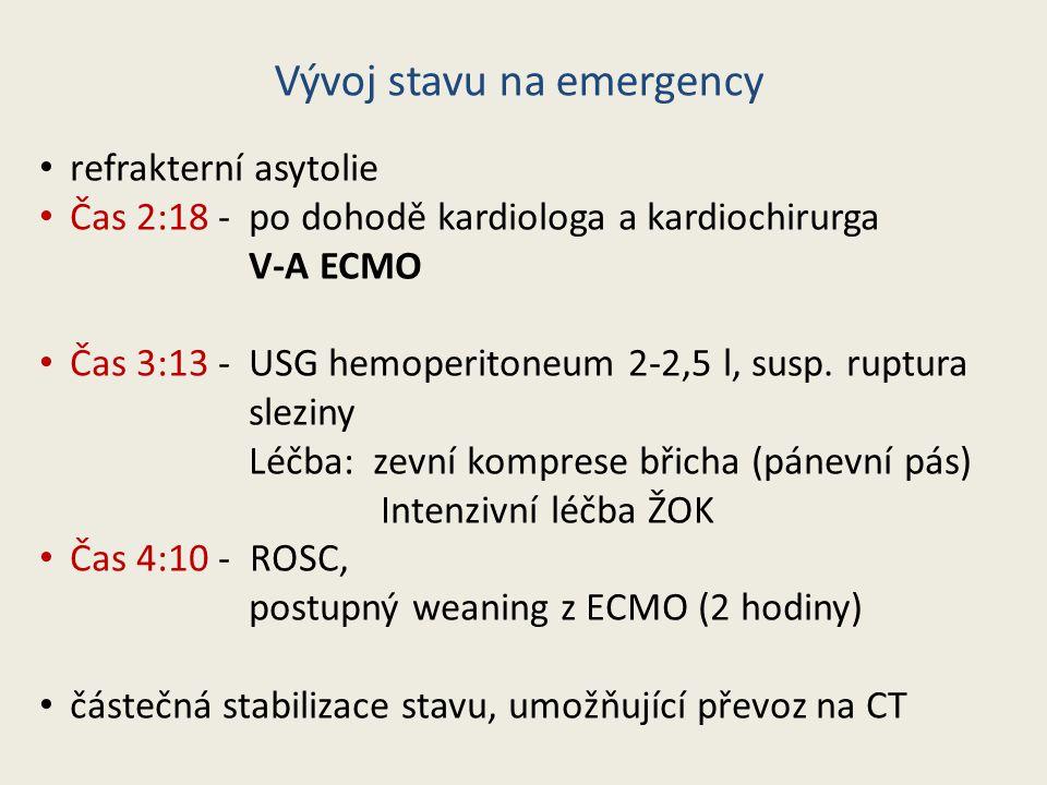 refrakterní asytolie Čas 2:18 - po dohodě kardiologa a kardiochirurga V-A ECMO Čas 3:13 - USG hemoperitoneum 2-2,5 l, susp. ruptura sleziny Léčba: zev