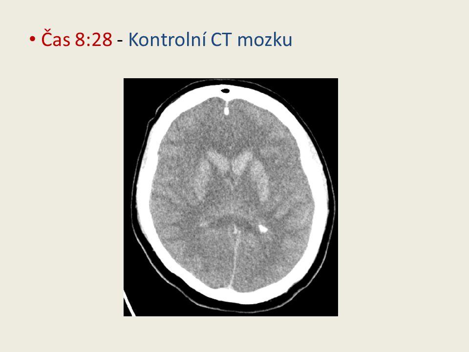 Čas 8:28 - Kontrolní CT mozku