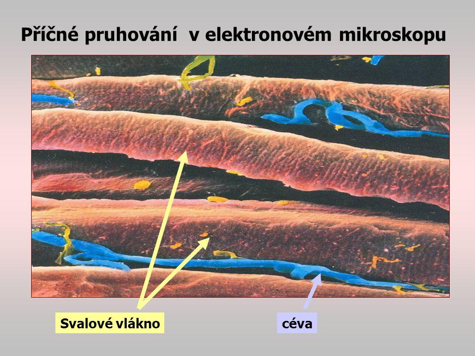 """Metabolismus svalu -probíhá v citrátovém cyklu, za uvolnění energie (ATP) +CO 2 +H 2 O+Tepla -hlavním substrátem je cukr (ze zásob, z glykogenu..) -metabolismus svalu vyžaduje množství O 2 ( cca 9litrů/hod v klidu a 90 litrů při svalové práci … protože není vždy dostatečné množství kyslíku, sval pracuje na kyslíkový dluh a ve svalech se hromadí kyselé meziprodukty zejména ketony a kyselina mléčná… sníží se pH svalu …bolesti svalu, """"svalovice , únava, … Při odpočinku se sval regeneruje, tj."""