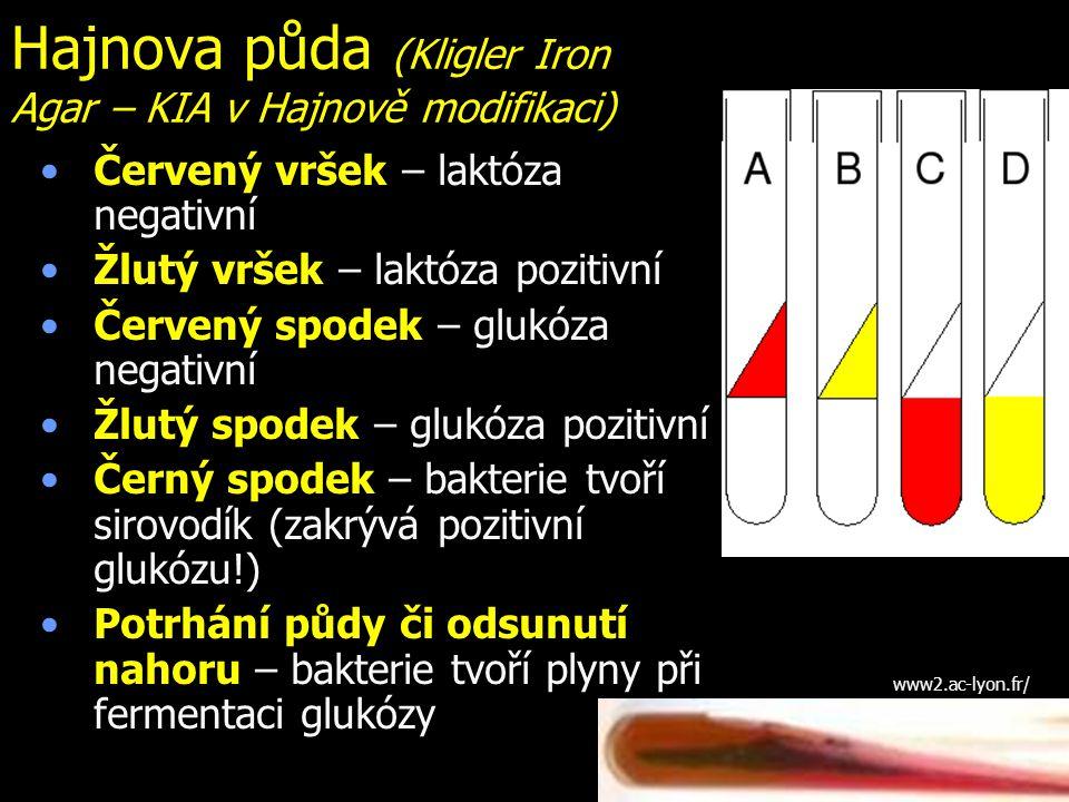 Hajnova půda (Kligler Iron Agar – KIA v Hajnově modifikaci) Červený vršek – laktóza negativní Žlutý vršek – laktóza pozitivní Červený spodek – glukóza