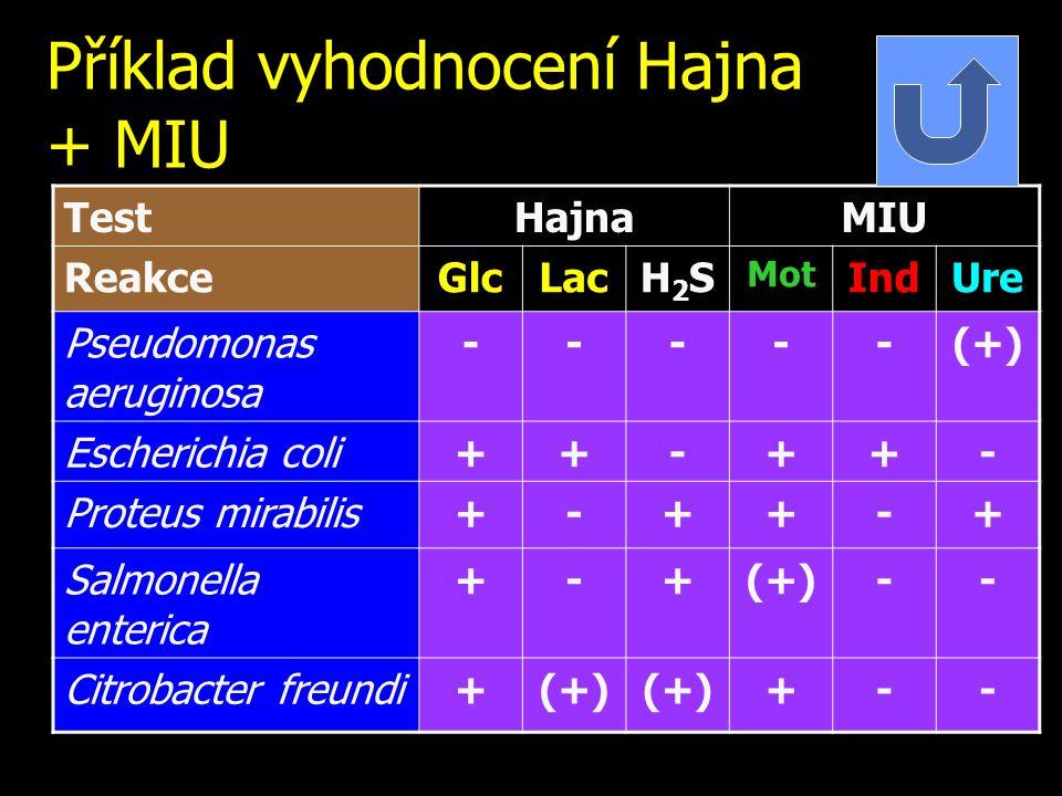 Příklad vyhodnocení Hajna + MIU TestHajnaMIU ReakceGlcLacH2SH2S Mot IndUre Pseudomonas aeruginosa -----(+) Escherichia coli++-++- Proteus mirabilis+-+