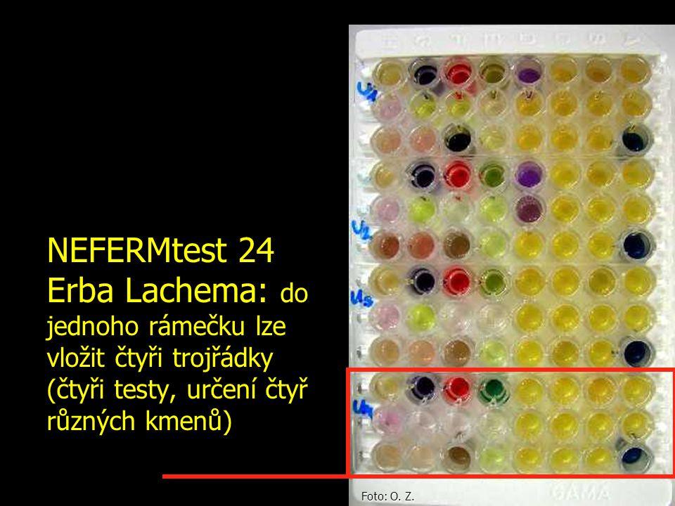 NEFERMtest 24 Erba Lachema: do jednoho rámečku lze vložit čtyři trojřádky (čtyři testy, určení čtyř různých kmenů) Foto: O. Z.