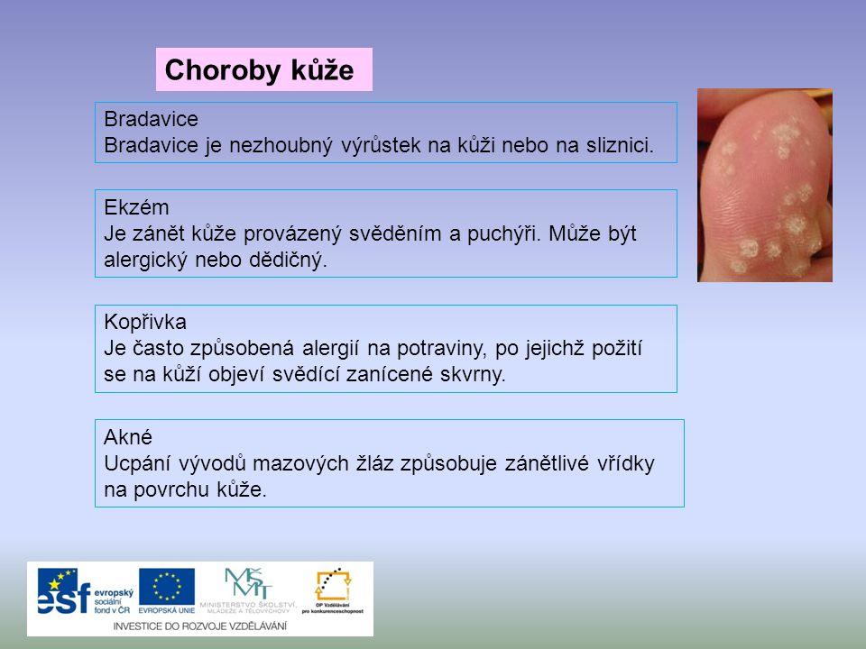 Choroby kůže Akné Ucpání vývodů mazových žláz způsobuje zánětlivé vřídky na povrchu kůže. Kopřivka Je často způsobená alergií na potraviny, po jejichž