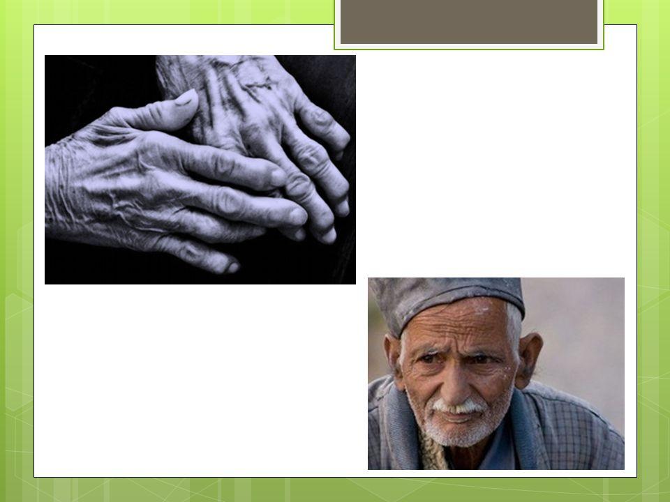 3. podkožní vazivo - nejspodnější vrstva kůže - tuková tkáň => určuje tvar a hmotnost těla