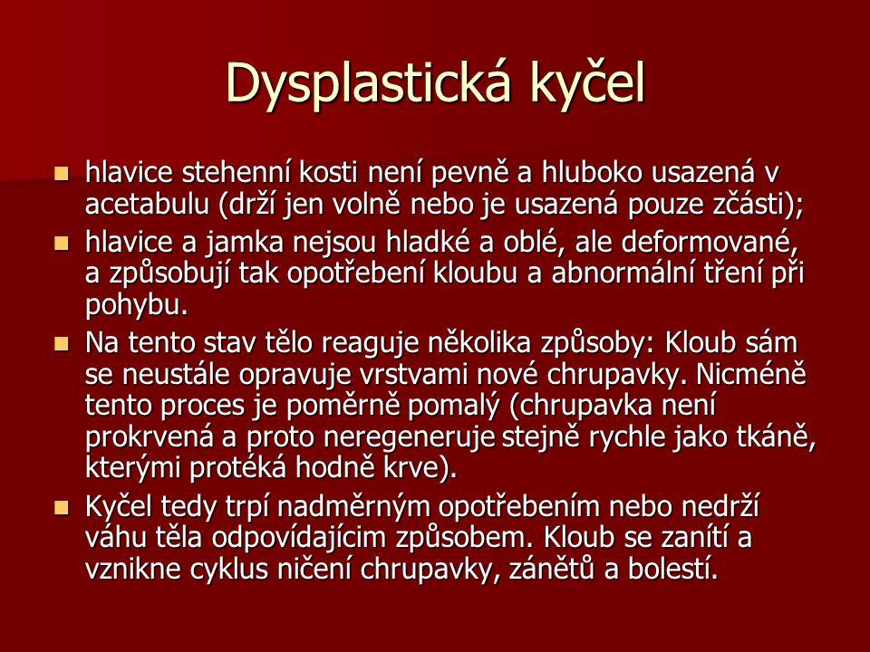 Použitá literatura Bursová, M.(2005). Kompenzační cvičení.