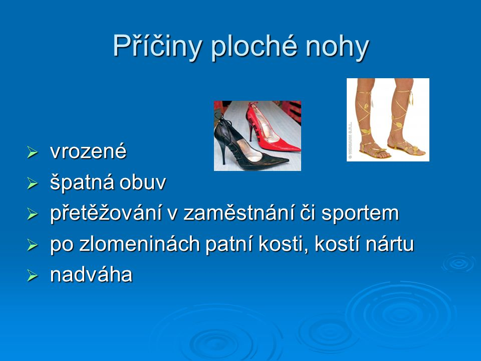 Příčiny ploché nohy  vrozené  špatná obuv  přetěžování v zaměstnání či sportem  po zlomeninách patní kosti, kostí nártu  nadváha