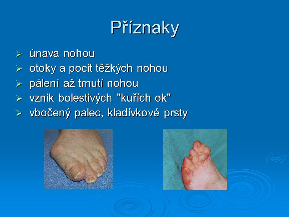 Příznaky  únava nohou  otoky a pocit těžkých nohou  pálení až trnutí nohou  vznik bolestivých