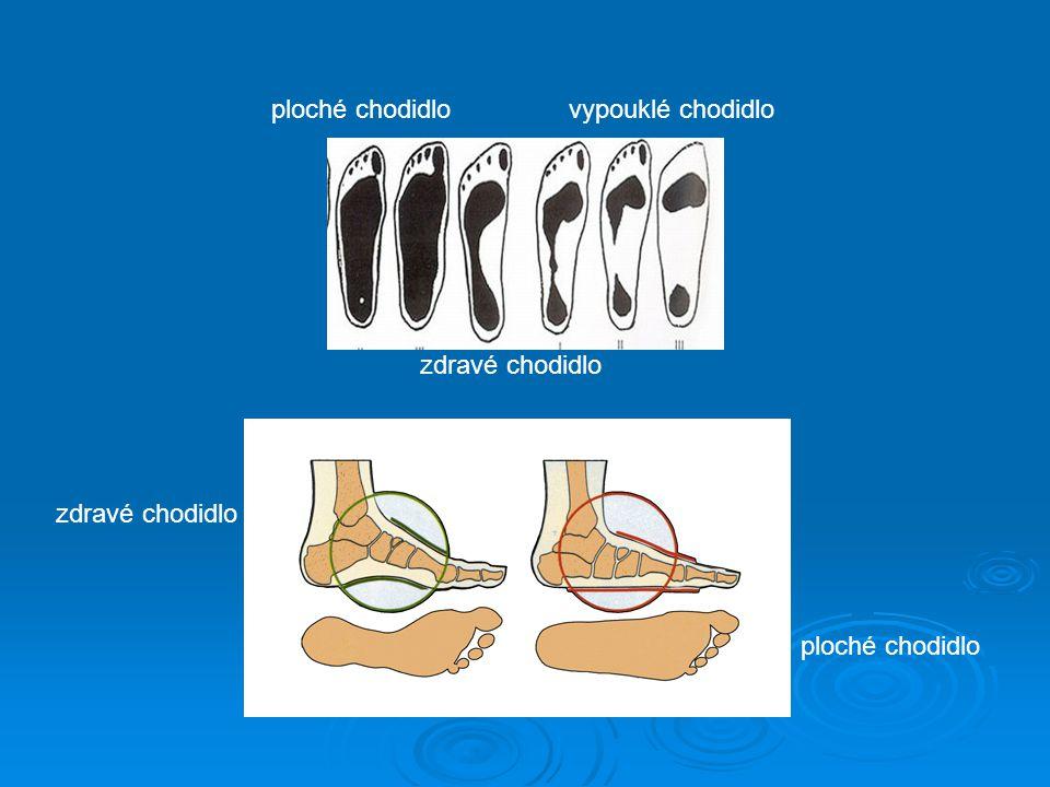 zdravé chodidlo ploché chodidlovypouklé chodidlo zdravé chodidlo ploché chodidlo