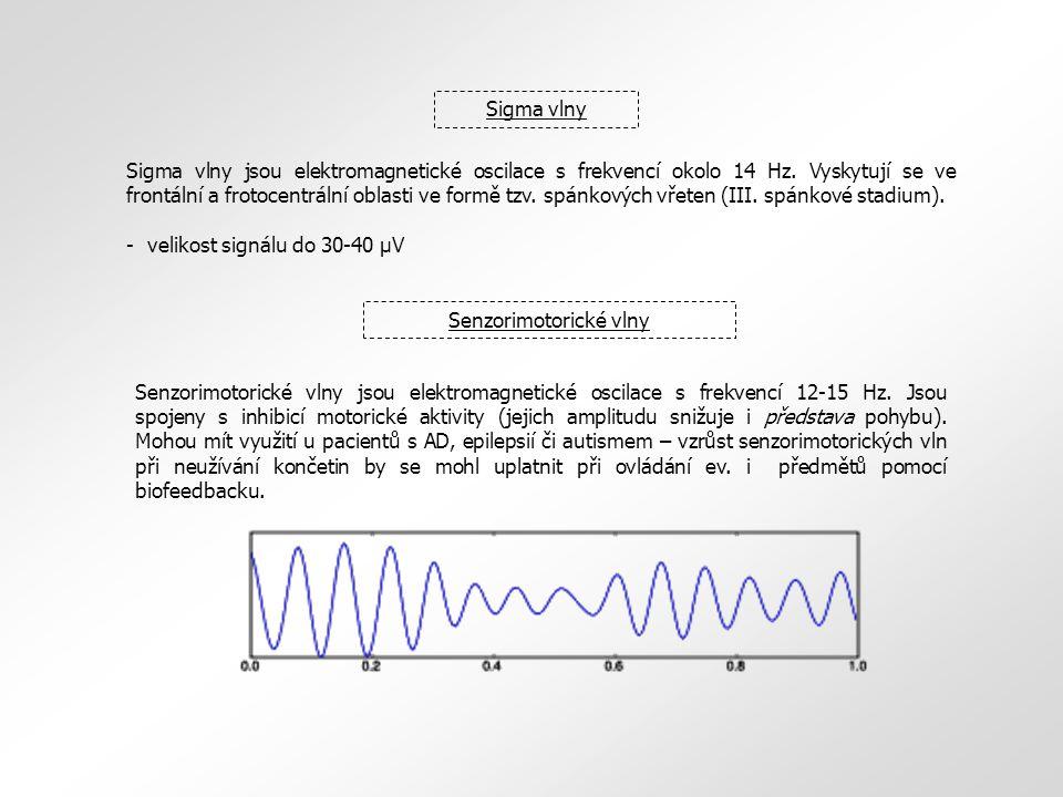 Sigma vlny Sigma vlny jsou elektromagnetické oscilace s frekvencí okolo 14 Hz. Vyskytují se ve frontální a frotocentrální oblasti ve formě tzv. spánko