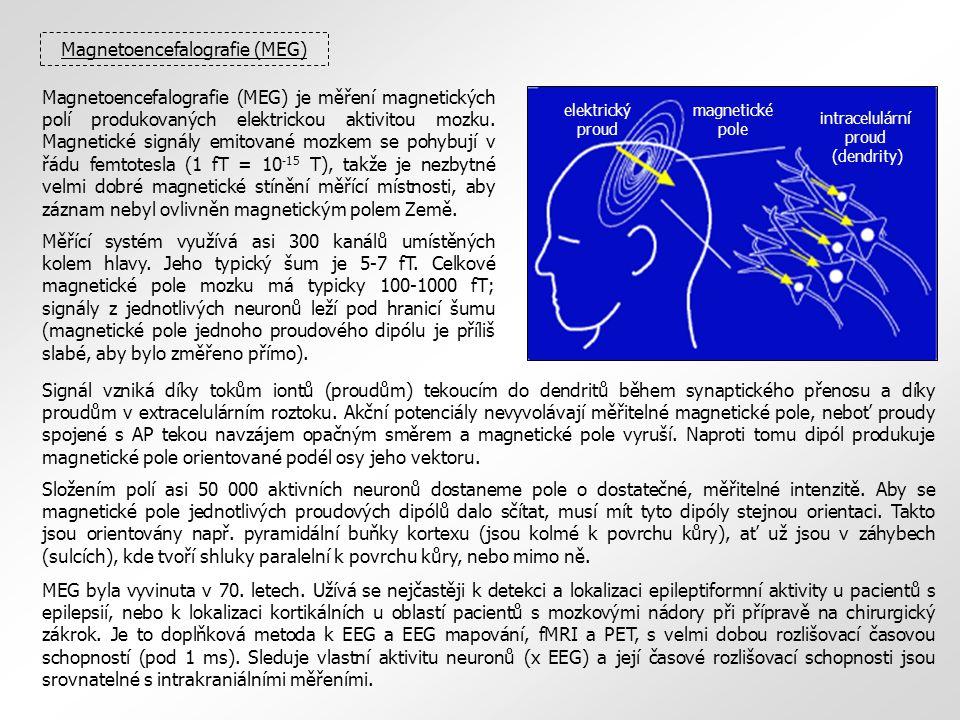 Magnetoencefalografie (MEG) elektrický proud magnetické pole intracelulární proud (dendrity) Magnetoencefalografie (MEG) je měření magnetických polí p