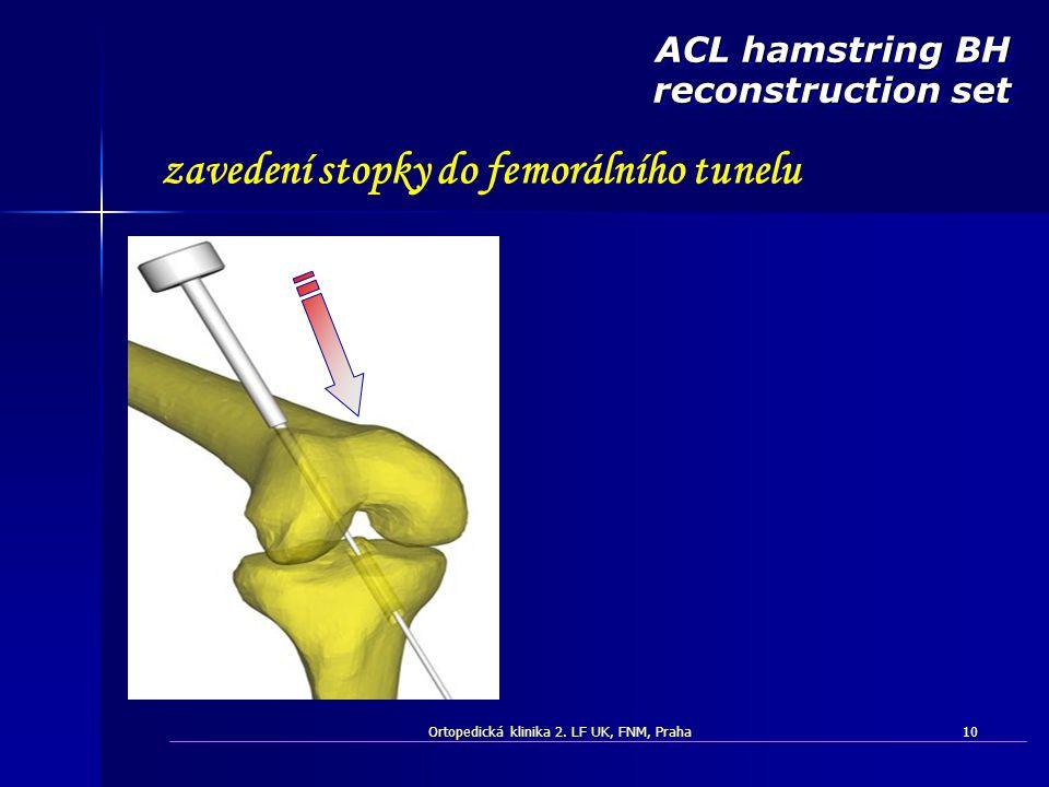 Ortopedická klinika 2. LF UK, FNM, Praha10 ACL hamstring BH reconstruction set zavedení stopky do femorálního tunelu