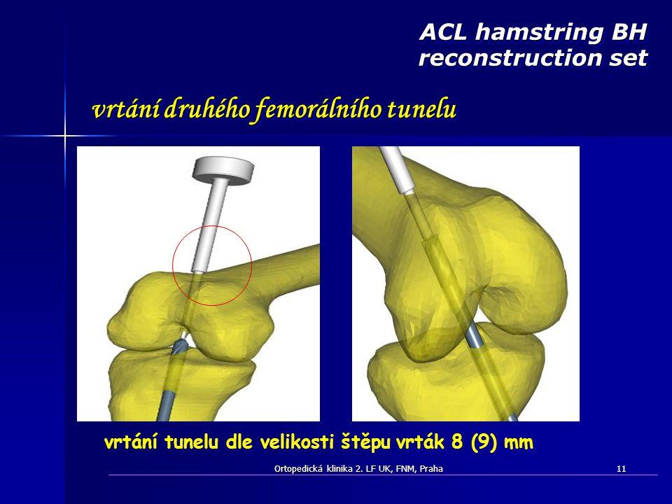 Ortopedická klinika 2. LF UK, FNM, Praha11 vrtání tunelu dle velikosti štěpu vrták 8 (9) mm ACL hamstring BH reconstruction set vrtání druhého femorál