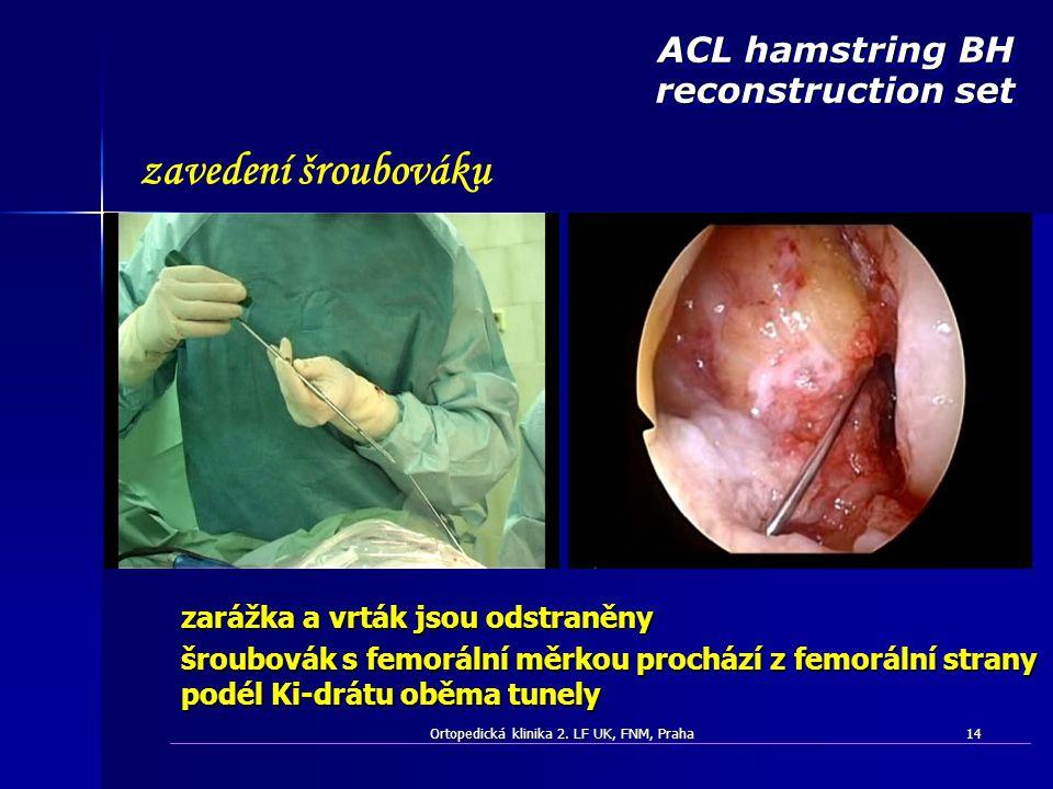 Ortopedická klinika 2. LF UK, FNM, Praha14 zarážka a vrták jsou odstraněny šroubovák s femorální měrkou prochází z femorální strany podél Ki-drátu obě