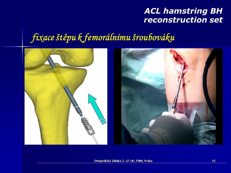 Ortopedická klinika 2. LF UK, FNM, Praha15 fixace štěpu k femorálnímu šroubováku ACL hamstring BH reconstruction set