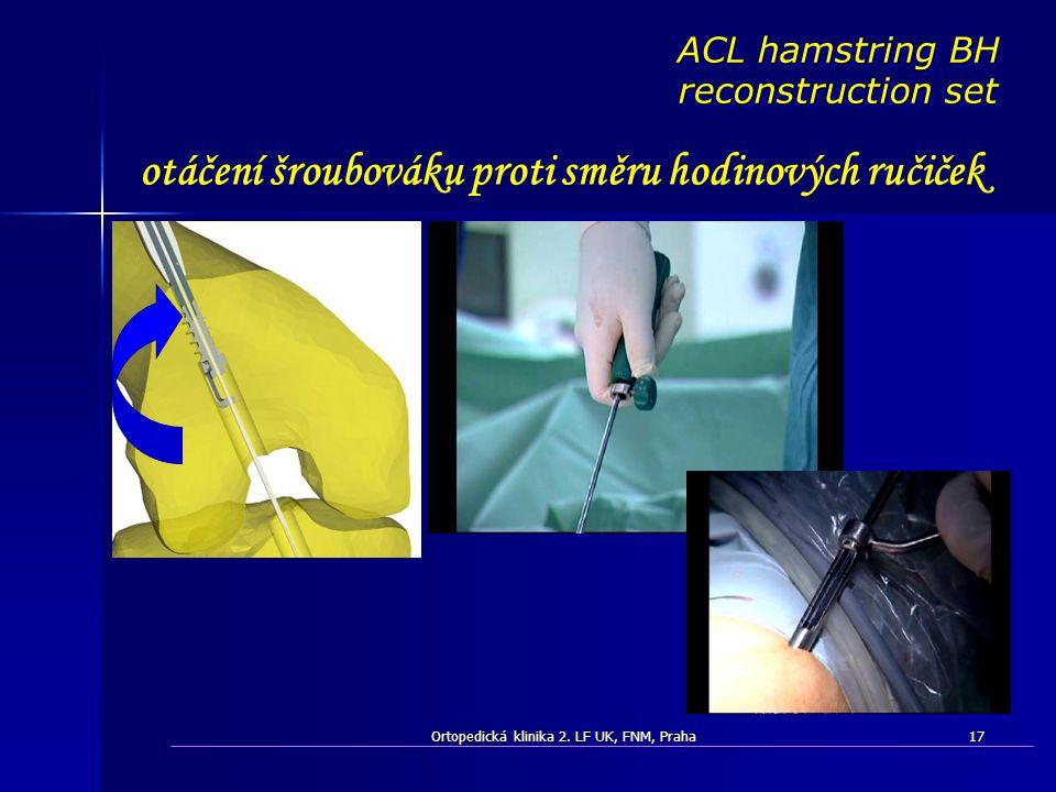 Ortopedická klinika 2. LF UK, FNM, Praha17 otáčení šroubováku proti směru hodinových ručiček ACL hamstring BH reconstruction set