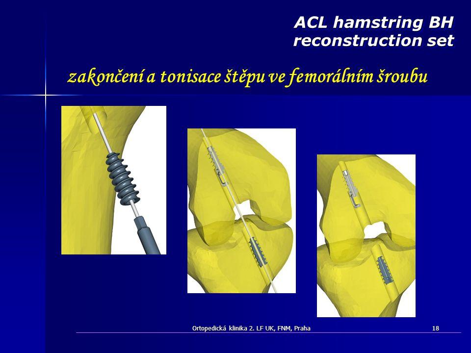 Ortopedická klinika 2. LF UK, FNM, Praha18 zakončení a tonisace štěpu ve femorálním šroubu ACL hamstring BH reconstruction set