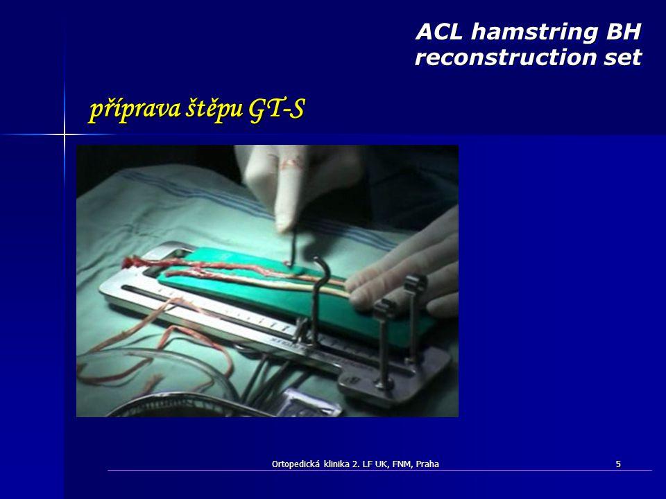Ortopedická klinika 2. LF UK, FNM, Praha5 ACL hamstring BH reconstruction set příprava štěpu GT-S