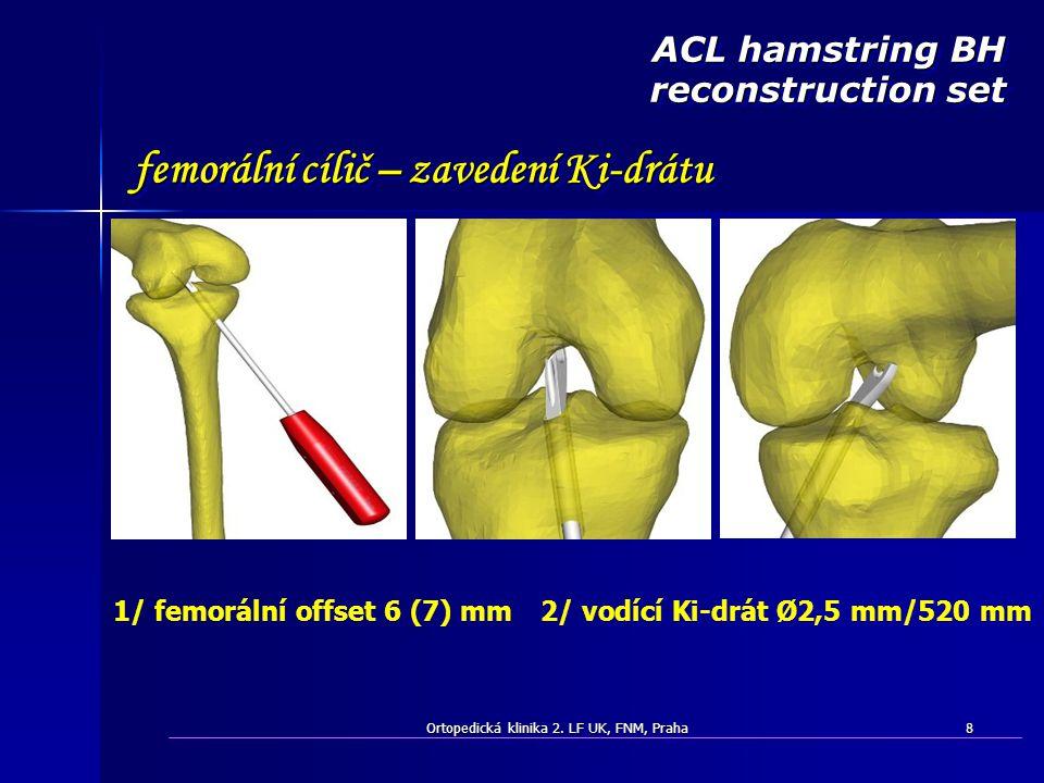 Ortopedická klinika 2. LF UK, FNM, Praha8 femorální cílič – zavedení Ki-drátu ACL hamstring BH reconstruction set 2/ vodící Ki-drát Ø2,5 mm/520 mm1/ f