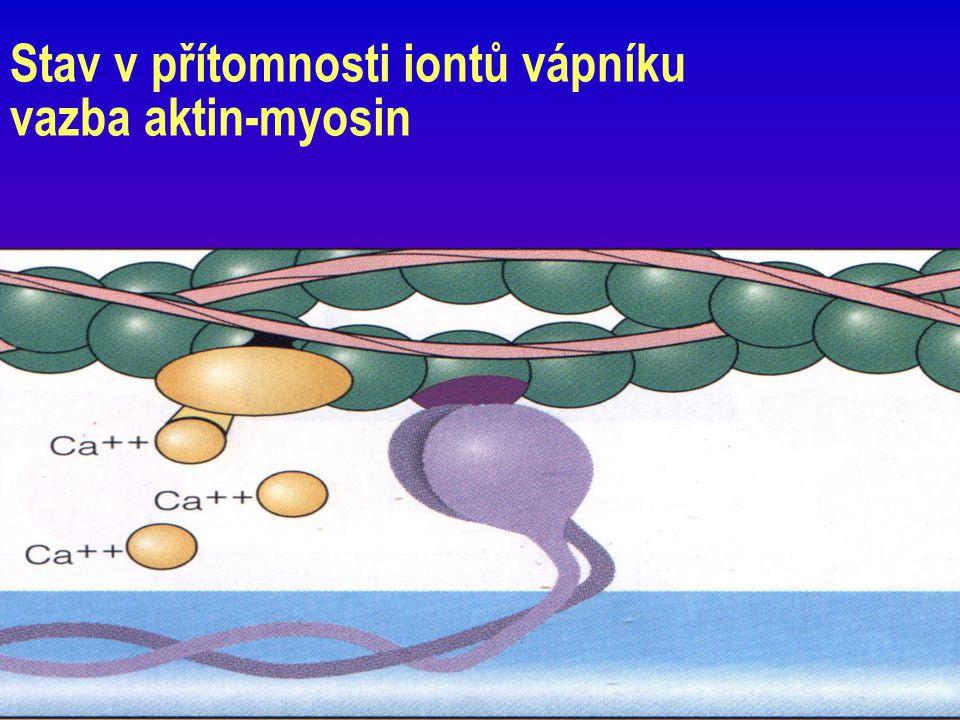 Závěr 28 1) Troponin = nový standard v biochemických kardiomarkerech 2) Nezbytnost zavedení protokolu (pracovního postupu) jak Tn a Mb využívat v praxi 3) Význam stanovení troponinů 4) Standardizace stanovení (TnI) 5) Vývoj a zdokonalení postupů užití 6) Rozhodnutí, který z troponinů kvantitativně stanovovat závisí na dostupnosti a vybavenosti laboratoře