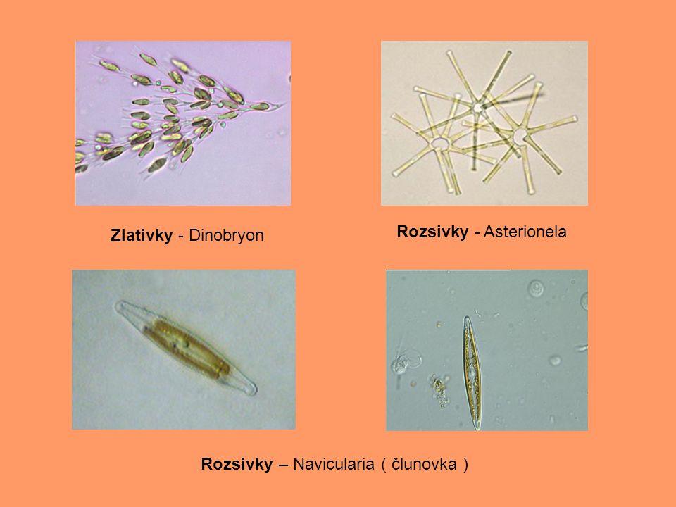 Zlativky - Dinobryon Rozsivky - Asterionela Rozsivky – Navicularia ( člunovka )