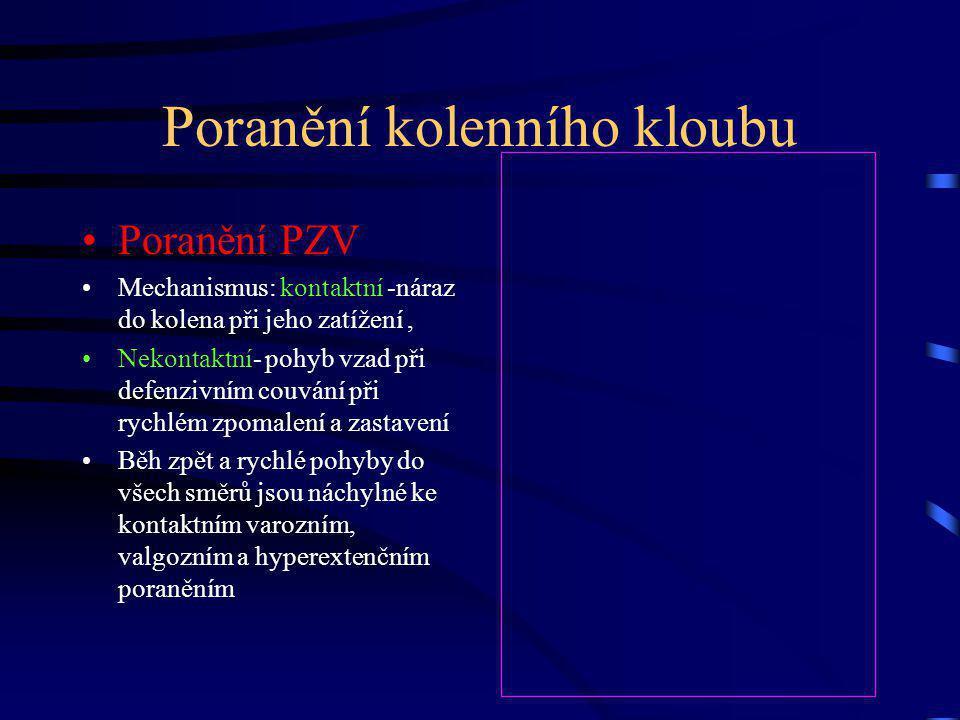 Poranění kolenního kloubu Poranění PZV Mechanismus: kontaktní -náraz do kolena při jeho zatížení, Nekontaktní- pohyb vzad při defenzivním couvání při rychlém zpomalení a zastavení Běh zpět a rychlé pohyby do všech směrů jsou náchylné ke kontaktním varozním, valgozním a hyperextenčním poraněním