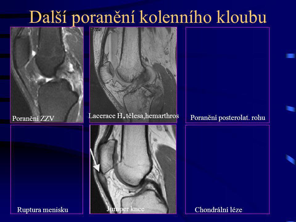 Další poranění kolenního kloubu Poranění ZZV Jumper knee Ruptura meniskuChondrální léze Poranění posterolat. rohu Lacerace H. tělesa,hemarthros Jumper