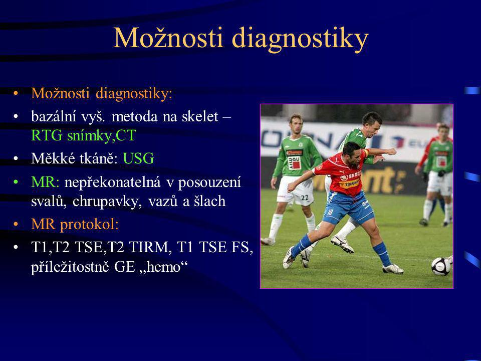 Možnosti diagnostiky Možnosti diagnostiky: bazální vyš. metoda na skelet – RTG snímky,CT Měkké tkáně: USG MR: nepřekonatelná v posouzení svalů, chrupa