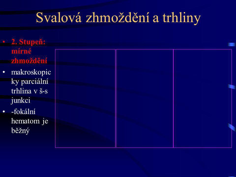 Svalová zhmoždění a trhliny 2.