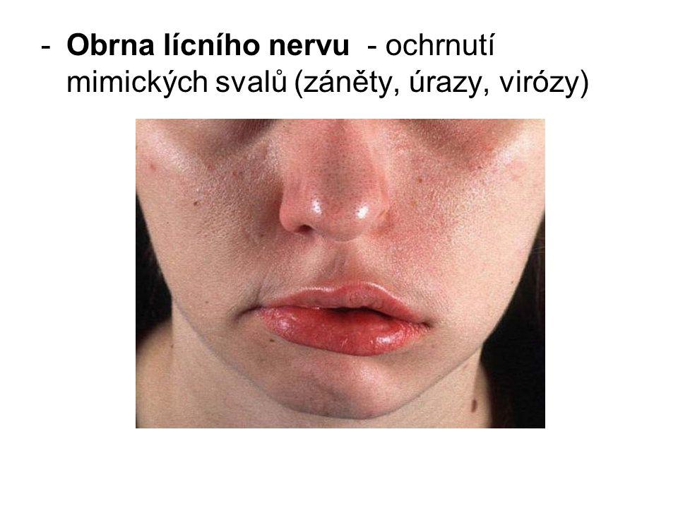 -Obrna lícního nervu - ochrnutí mimických svalů (záněty, úrazy, virózy)