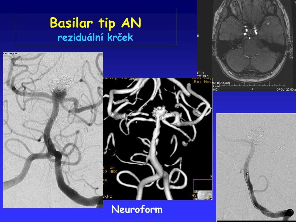 Basilar tip AN reziduální krček Neuroform